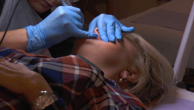 Mikropigmentacja pomaga ukryć niedoskonałości skóry