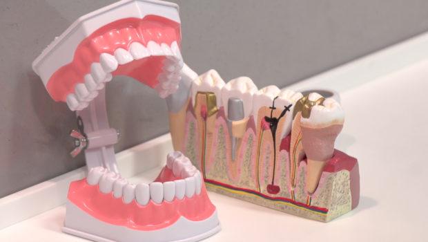 Leczenie zębów już nie boli – najnowsze rodzaje znieczulenia